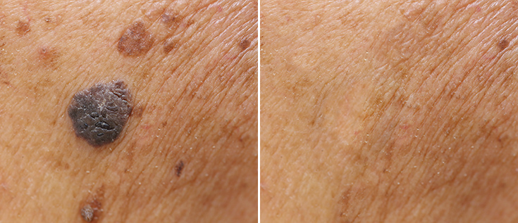 skin-cancer-before-after